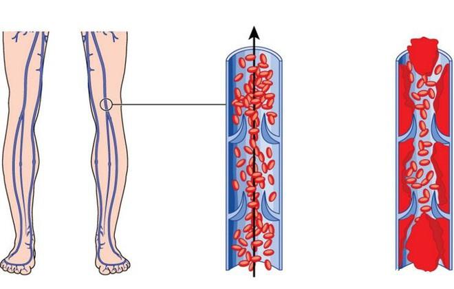 1336 6 dấu hiệu cảnh báo có cục máu đông trong cơ thể