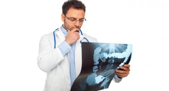 1 108 Các giai đoạn của bệnh ung thư đại tràng