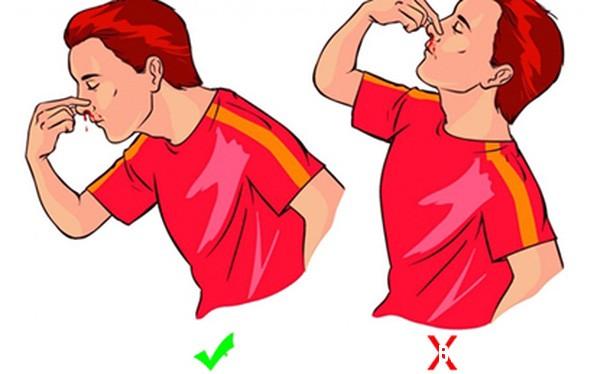 1 228 Cách xử lý đúng khi bị chảy máu cam