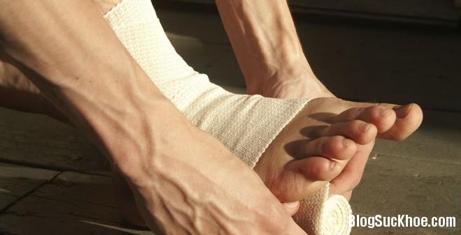1 269 Những mẹo hay chữa bong gân bạn không nên bỏ qua