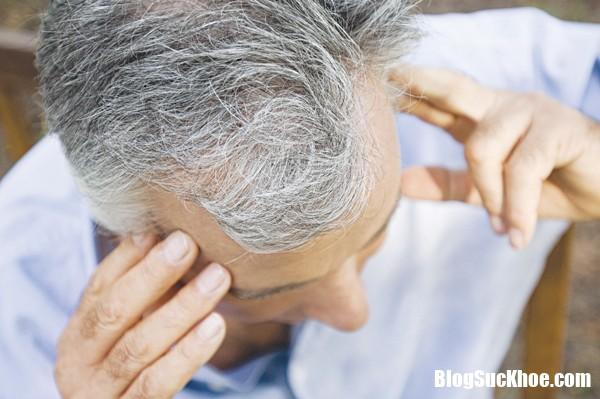 benh teo nao Bệnh teo não nguy hiểm như thế nào ?