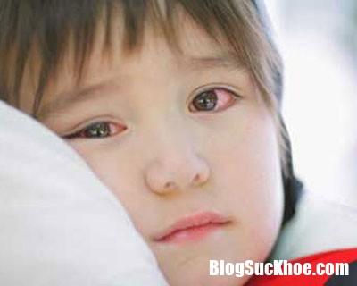 dau mat do dspl2 Bị đau mắt đỏ nên tránh xa những món này để bảo vệ mắt