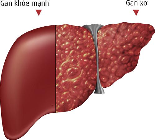la gan Chế độ ăn uống dành cho bệnh nhân xơ gan