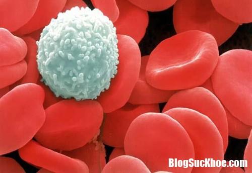 084616 ung thu mau 1 Chảy máu răng bất thường có thể là dấu hiệu của ung thư máu