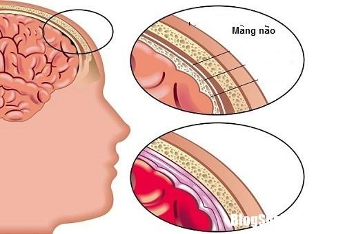 20160605172705 1 Những dấu hiệu ít ai ngờ cửa bệnh viêm màng não
