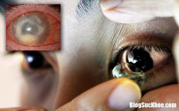 20170305163813 ap trong2 Đeo kính áp tròng làm đẹp dễ có nguy cơ bị mù vĩnh viễn