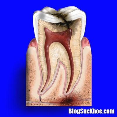 48e341 Hậu quả của viêm tủy răng