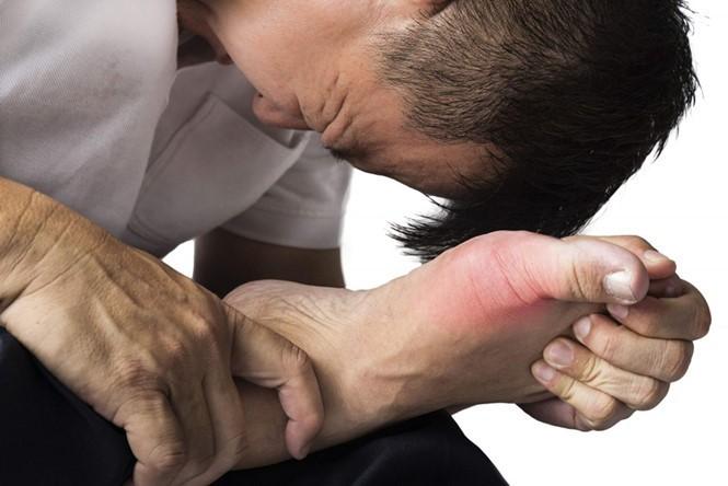 benh gout2 ofvw ahea Các triệu chứng của bệnh gout dễ nhận thấy