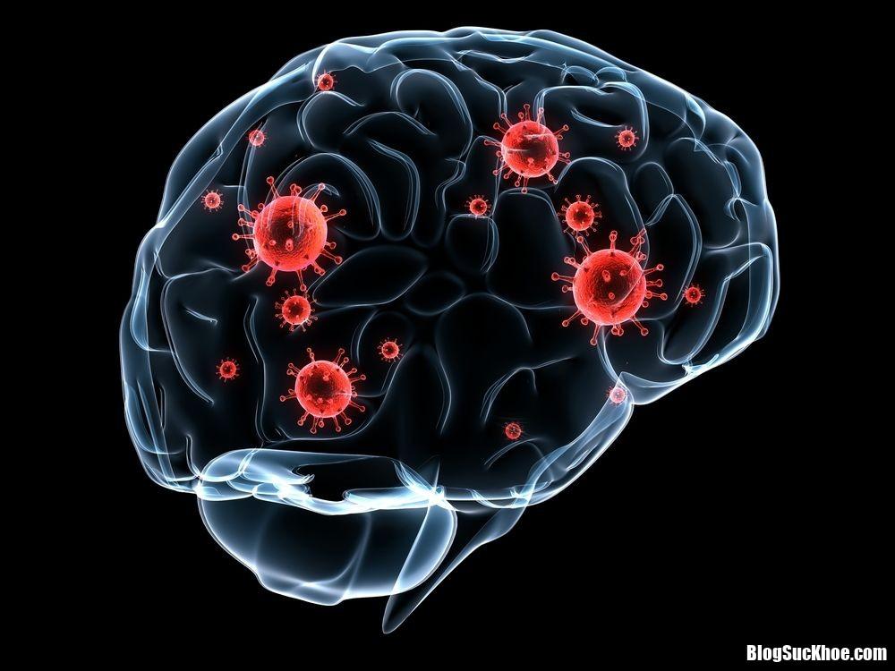 f12e2e765be252da657a22d067437425 Những điều cần biết về triệu chứng của bệnh giang mai