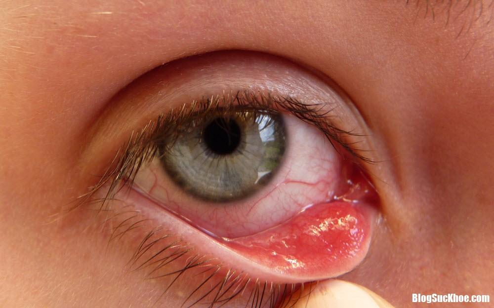 lam the nao khi moc mun nuoc o mi mat Những vấn đề sức khỏe được nhận biết thông qua đôi mắt