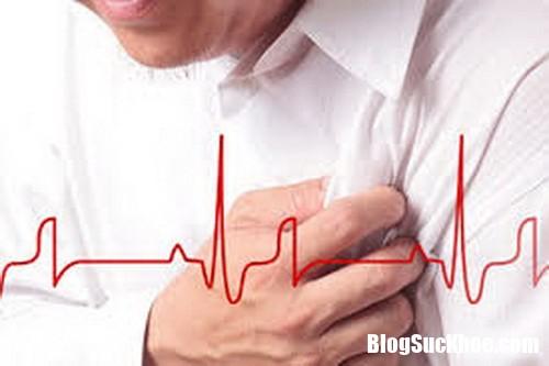 phan bit cn au tim va t qu resize Đột quỵ và cơn đau tim khác nhau thế nào ?
