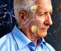 Nghiên cứu loại thuốc mới ngừa Alzheimer hiệu quả