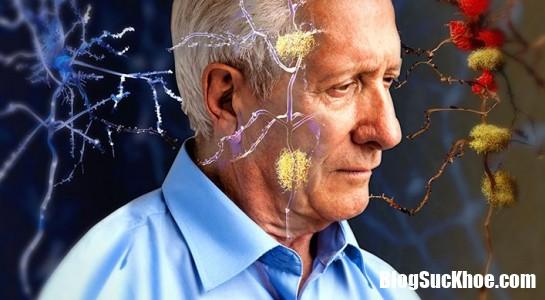 phat trien duoc thuoc moi ngua alzheimer hieu qua 68548 4a9cb08cf4ac8b76ede9c18d2644cb3e mattri resize Nghiên cứu loại thuốc mới ngừa Alzheimer hiệu quả