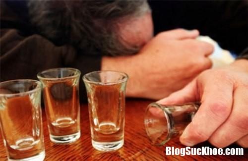 uong bia Cách chữa bệnh trĩ ngoại chính xác và hiệu quả
