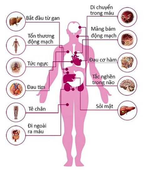 1 158570 Cholesterol cao nguy hiểm như thế nào?