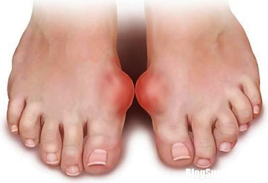 2 0904 Những bài thuốc đơn giản chữa bệnh gout hiệu quả