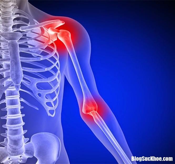 Dau nhuc xuong khop canh bao benh gi 1 Đau nhức xương khớp là dấu hiệu của bệnh gì ?
