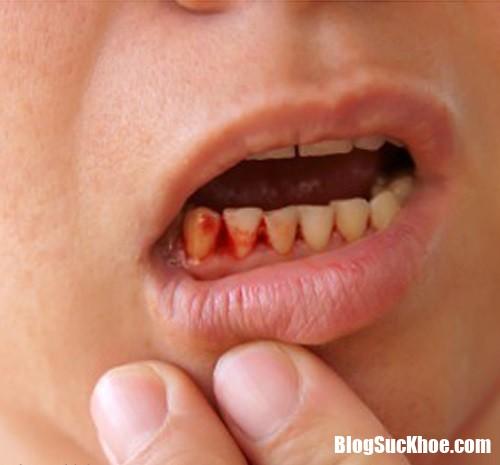 chay mau chan rang 1421 phunutoday Chảy máu chân răng nguy hiểm hơn bạn nghĩ nhiều, hãy đến bệnh viện ngay