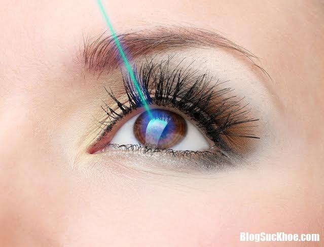 m3 1501723555291 Những nguyên nhân gây mất thị lực tạm thời 1 bên mắt
