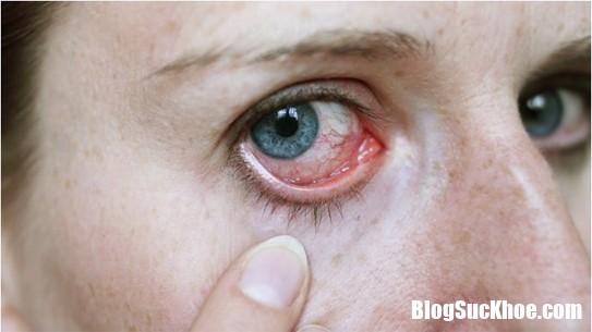 meo chua tri dau mat do tu nhien 1 Phòng ngừa dịch bệnh đau mắt đỏ sau đợt mưa kéo dài