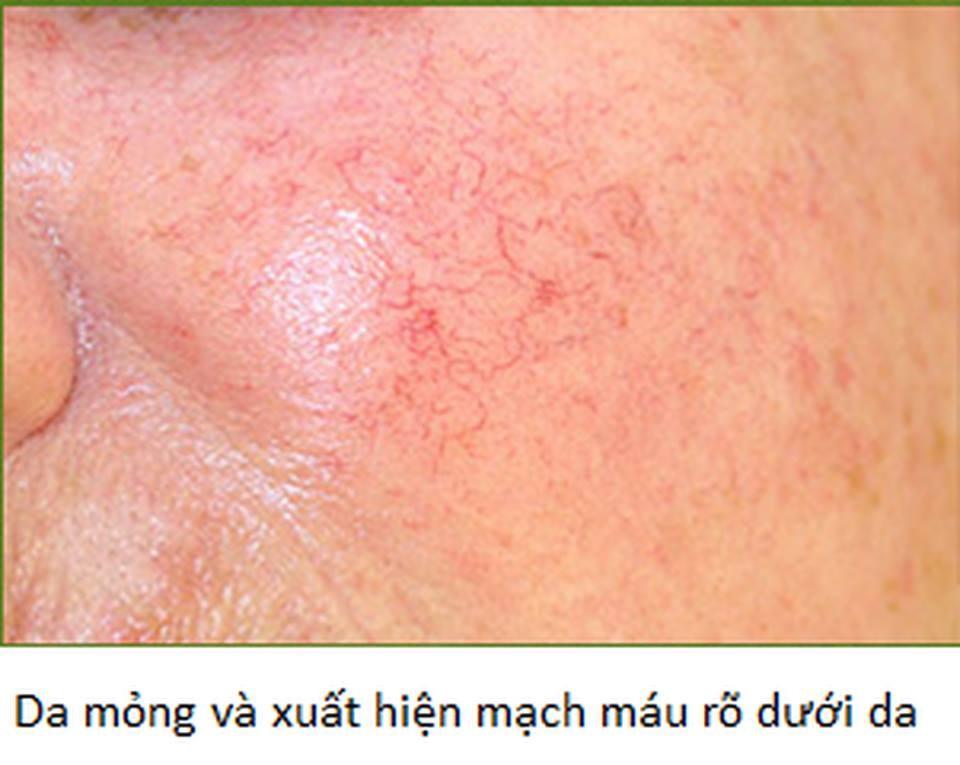 15227948 1156150377839064 1696343540 n Hậu quả khó lường của việc lạm dụng thuốc chứa corticoid