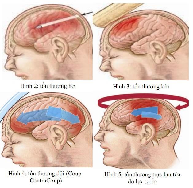 chan thuong so nao Cách nhận biết chấn thương sọ não