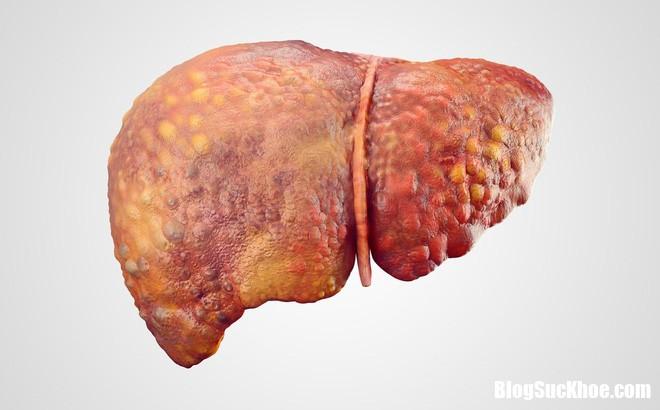 czbd9znweaatfcr 1506930263950 65 0 686 1000 crop 1506930273866 Những triệu chứng cho thấy gan đang bị hư hỏng nặng