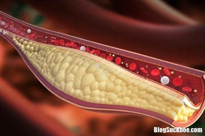 image001 nbuv Những thực phẩm tuyệt đối tránh xa khi bị máu nhiễm mỡ