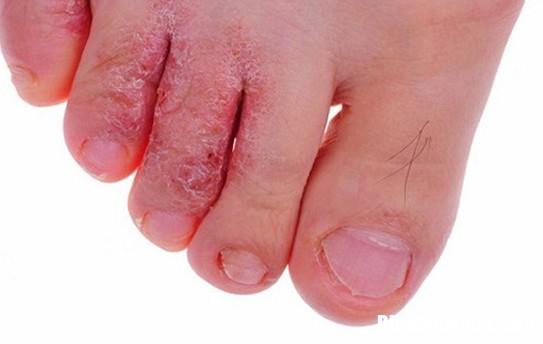 nuoc an chan Những sai lầm thường gặp khi chữa nước ăn chân