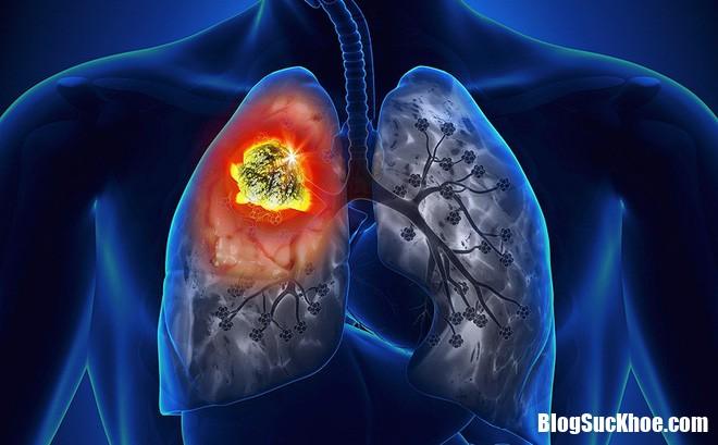 photo 2 1473047339508 1507607752754 70 0 566 800 crop 1508029459802 Vì sao phụ nữ không hút thuốc lá vẫn bị ung thư phổi ?