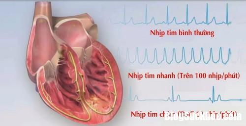roi loan nhip tim khi dung thuoc chua liet da day resize Dùng thuốc chữa liệt dạ dày có nguy cơ bị bệnh tim mạch