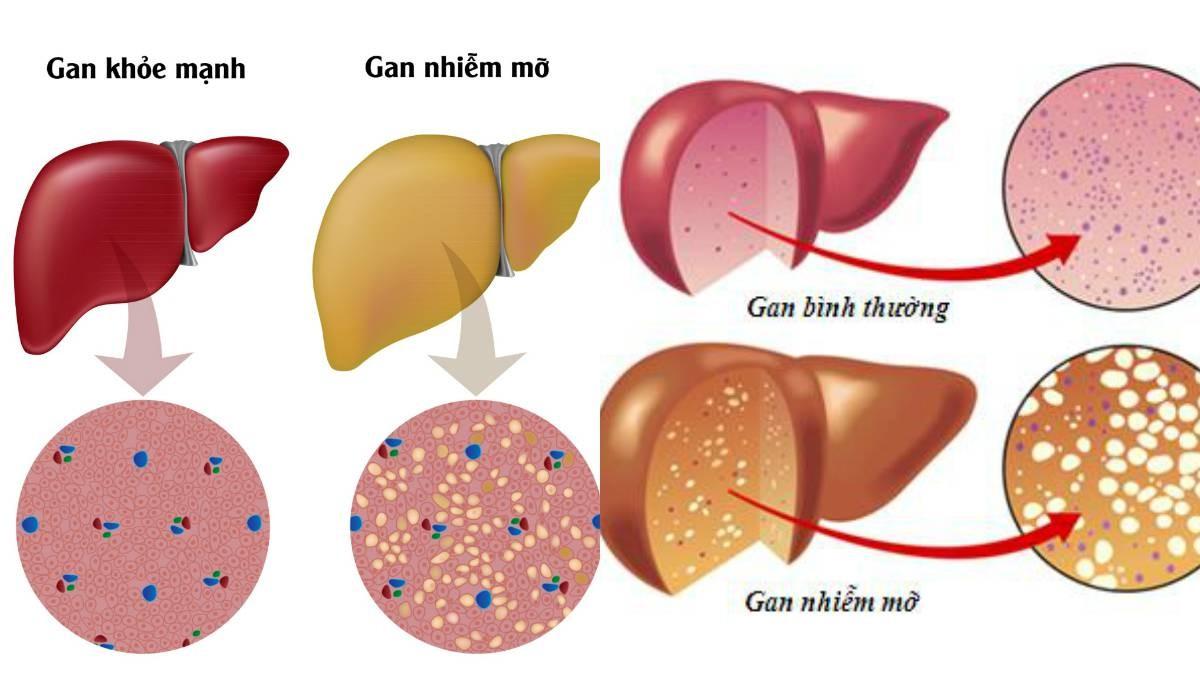 sieu am gan 1 Những yếu tố nguy cơ gây bệnh gan nhiễm mỡ