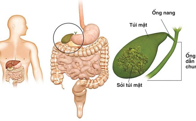 soimatdodaumaco 1508126411579 0 140 1020 1782 crop 1508126417545 Những triệu chứng bất thường cảnh báo túi m�t có vấn đề