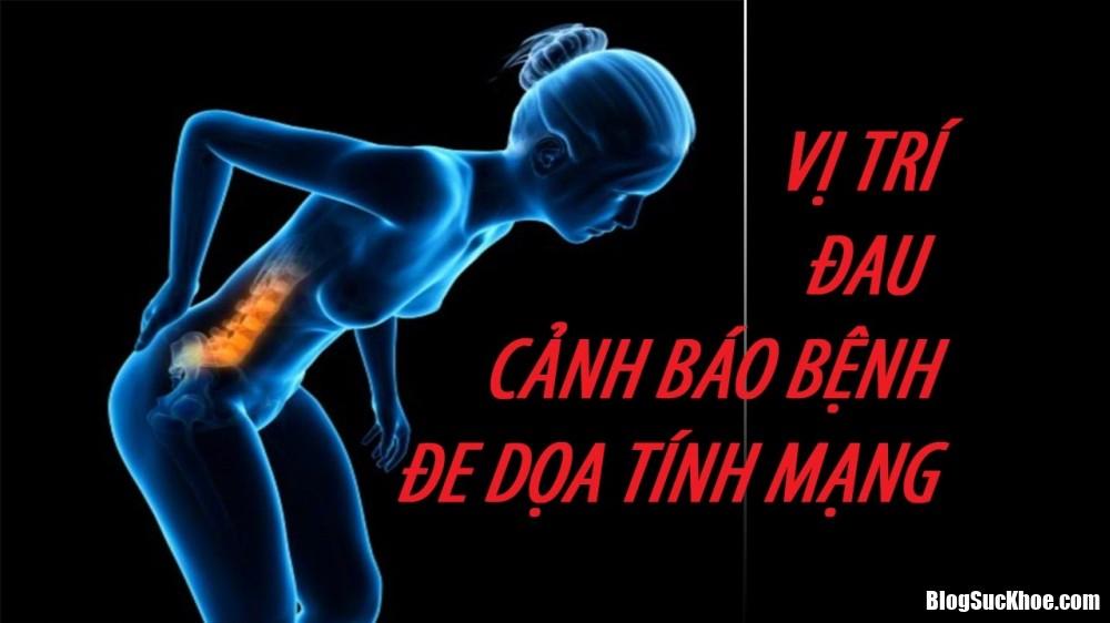 suc khoe 1407 phunutoday Những vị tr� đau báo hiệu bệnh nguy hiểm khôn lường