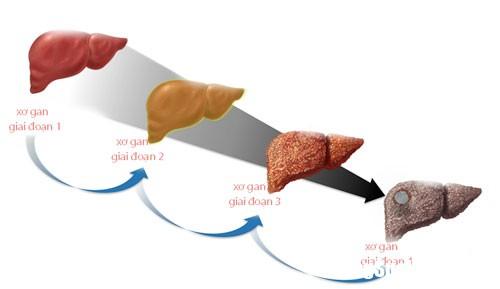xo1507609215 8822 Cách dùng thuốc nam điều trị bệnh xơ gan