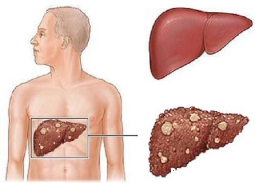 2 6845 1504066230 Phương pháp mới điều trị ung thư gan tiên tiến