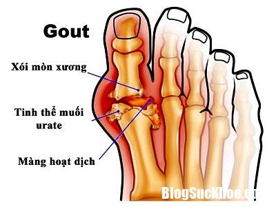 benh gut 2 Dùng thuốc điều trị gút đúng cách mới đạt hiệu quả cao