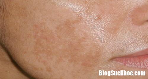 nam ma 7623 1506347590 Những thủ phạm gây tăng sắc tố da vùng mặt