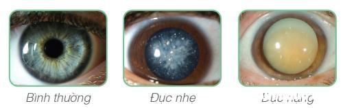 trieu chung cua benh duc thuy tinh the 2 23140241 Nguyên nhân và triệu chứng của bệnh đục thủy tinh thể