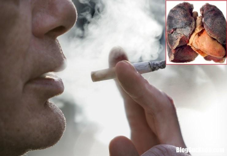 ung thu phoi2 1702 Ung thư phổi ngày càng tăng nhanh chỉ sau ung thư gan