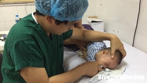 viemmuihong1 5359 1506160153 1 Cách vệ sinh mũi đúng cách giúp trẻ mau hết bệnh