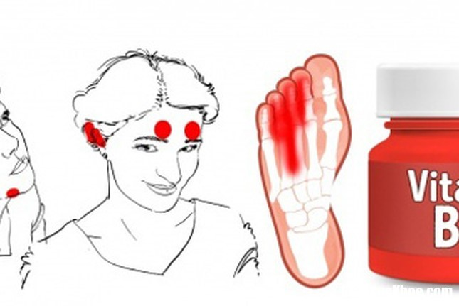 vitamin PVJB Những biểu hiện trên khuôn mặt cho thấy cơ thể đang bị thiếu vitamin