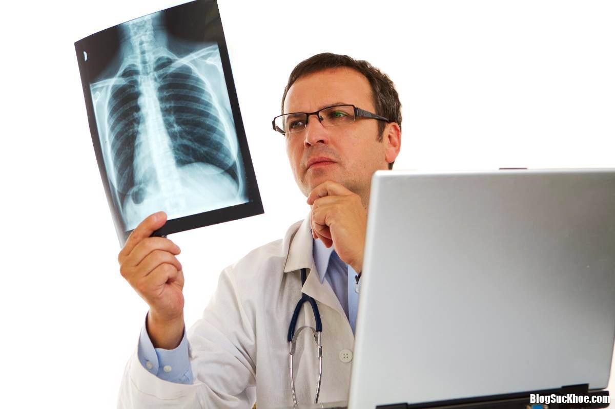 xinh hanh205 Những dấu hiệu sớm cảnh báo bệnh ung thư phổi