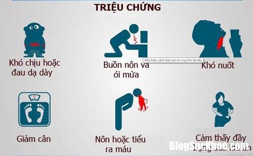yo su687 Ba căn bệnh ung thư phổ biến thường gặp ở đàn ông Việt Nam