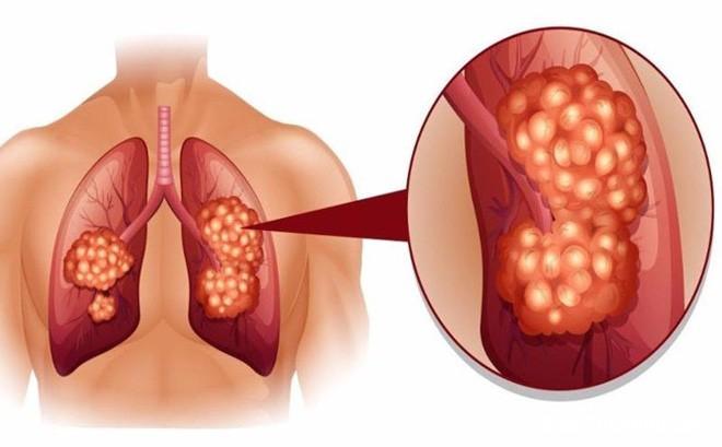 1482112236 ung thu 1493569668271 35 0 440 653 crop 1493569674962 Nh�n biết ung thư phổi qua hơi thở