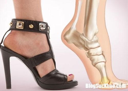 Moi nguy hai khon luong tu viec mang giay cao got de ton dang 1 Ảnh hưởng của việc mang giày cao gót thường xuyên