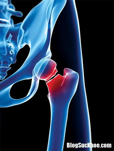 YqaEBSzE Bệnh loãng xương và những biến chứng vô cùng nguy hiểm