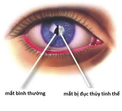 benh com mat kho tranh khoi o nguoi gia nhung khong dang ngai 1140168 Nhận biết bệnh cườm mắt ở người già