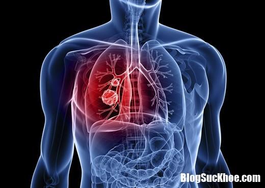 benh ung thu phoi song duoc bao lau hinh anh 2 162240849 Cách chăm sóc giúp kéo dài sự sống cho người bị bệnh ung thư phổi