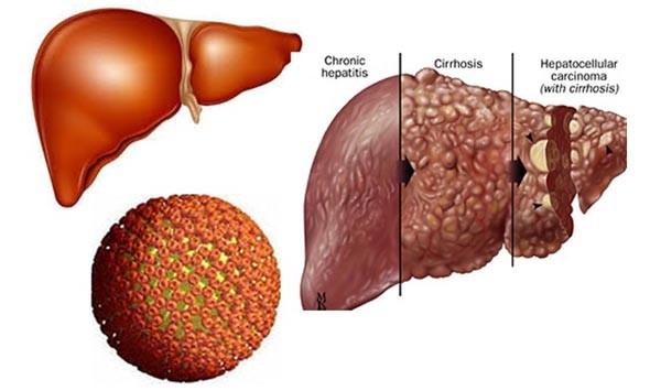benh viem gan B Những điều chưa biết về bệnh viêm gan B